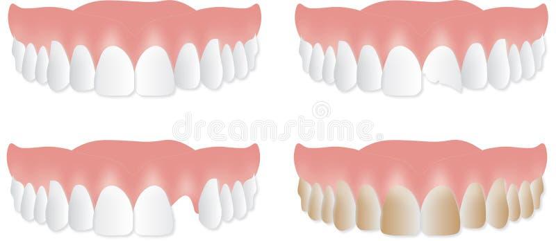 Plat supérieur de dentier Dents cassées, ébréchées, souillées illustration stock