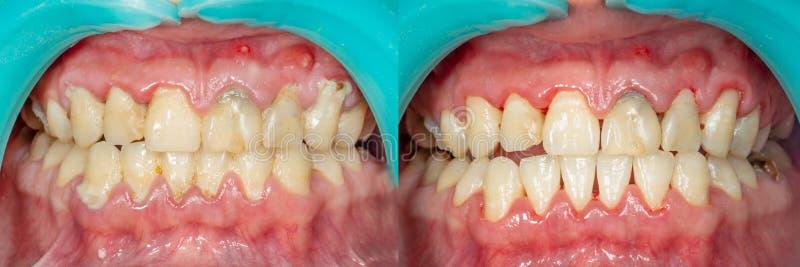 Platta av patienten, sten Tandläkekonstbehandling av tand- plaq fotografering för bildbyråer
