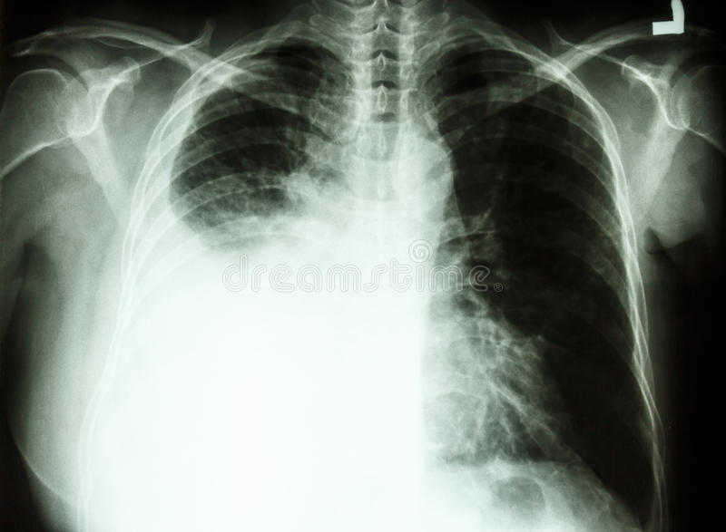 Pleural Effusion Due To Lung Cancer Royalty Free Stock ...