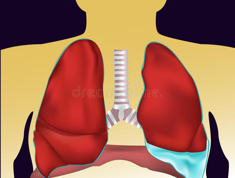Pleural effusion - flytande i pleural hål vektor illustrationer