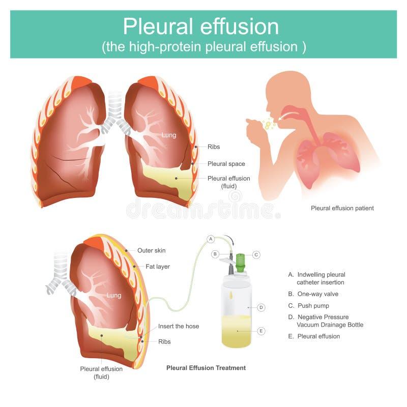 Pleural effusion the high-protein pleural effusion. vector illustration