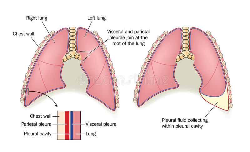 Pleural membranes and fluid royalty free illustration