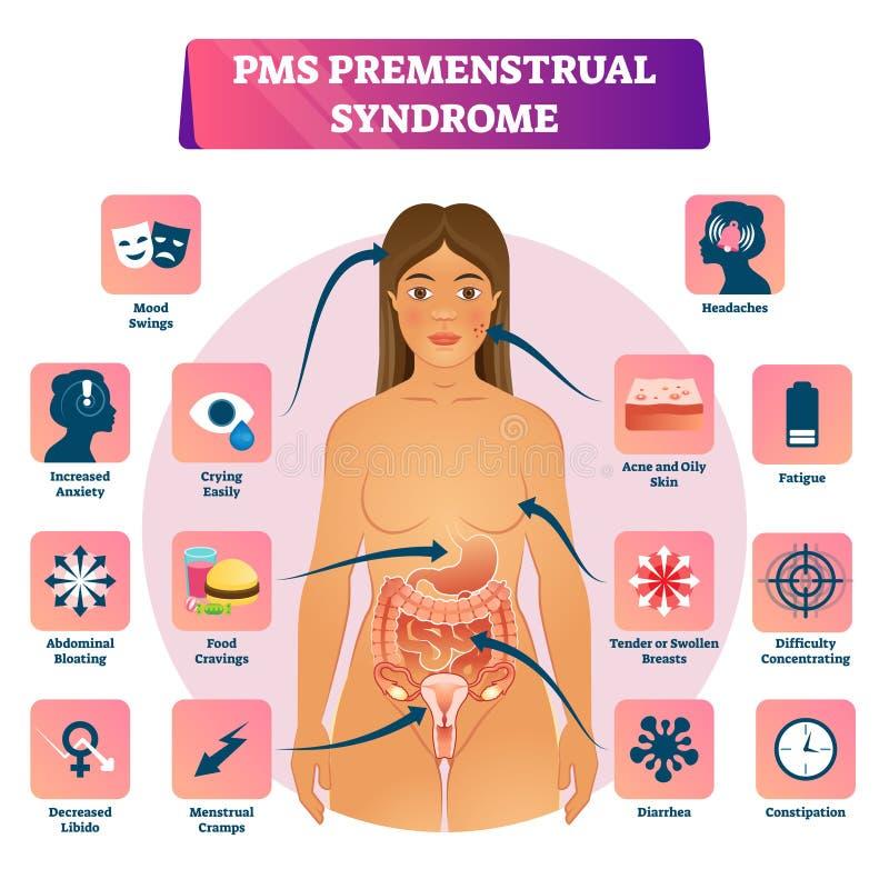PMS o schema educativo di sintomo dell'illustrazione di vettore di sindrome premestruale illustrazione vettoriale