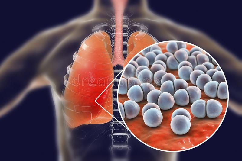 Pneumococcal pneumonia, medical concept. 3D illustration showing bacteria Streptococcus pneumoniae in human lungs stock illustration