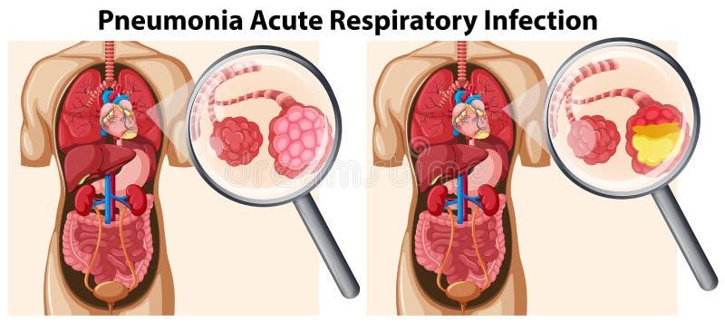 Pneumonia Acute Respiratory Infection. Illustration royalty free illustration