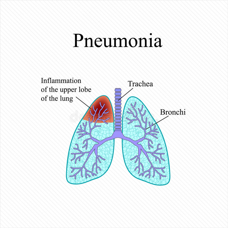 Pneumonia. The anatomical structure of the human lung. Inflammation of the upper lobe of the lung. Vector illustration stock illustration