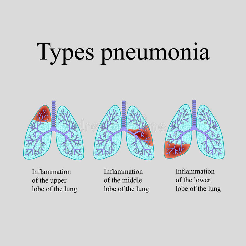 Pneumonia. The anatomical structure of the human lung. Type of pneumonia. Vector illustration on a gray background stock illustration