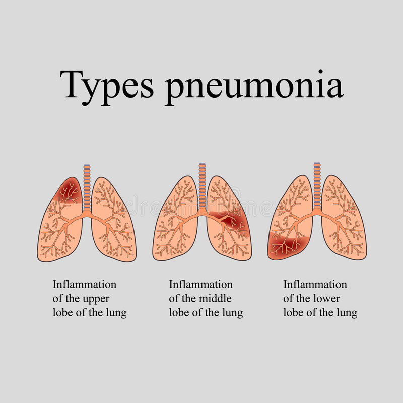 Pneumonia. The anatomical structure of the human lung. Type of pneumonia. Vector illustration on a gray background vector illustration