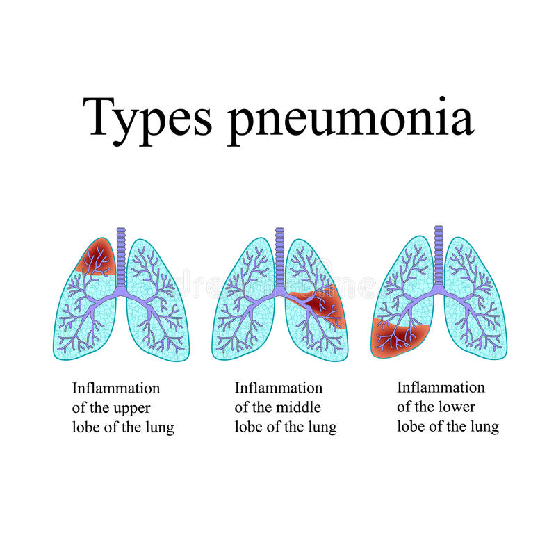 Pneumonia. The anatomical structure of the human lung. Type of pneumonia. Vector illustration on isolated background stock illustration
