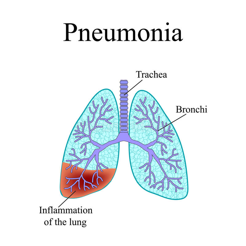 Pneumonia. The anatomical structure of the human stock illustration