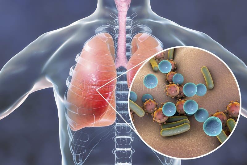 Pneumonia, conceito médico, ilustração que mostra os pulmões humanos e a opinião do close-up os micróbios nos pulmões ilustração do vetor