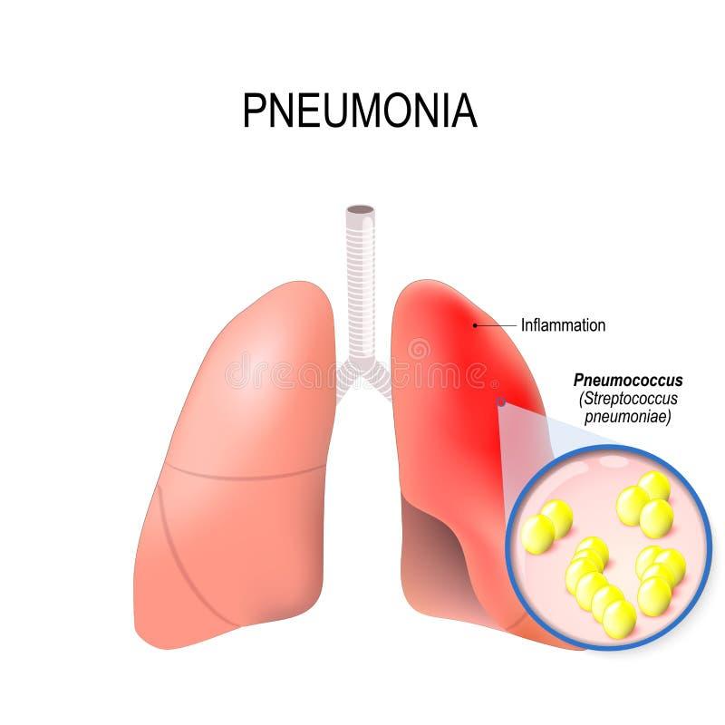 pneumonia Condição normal e inflamatório do pulmão ilustração stock