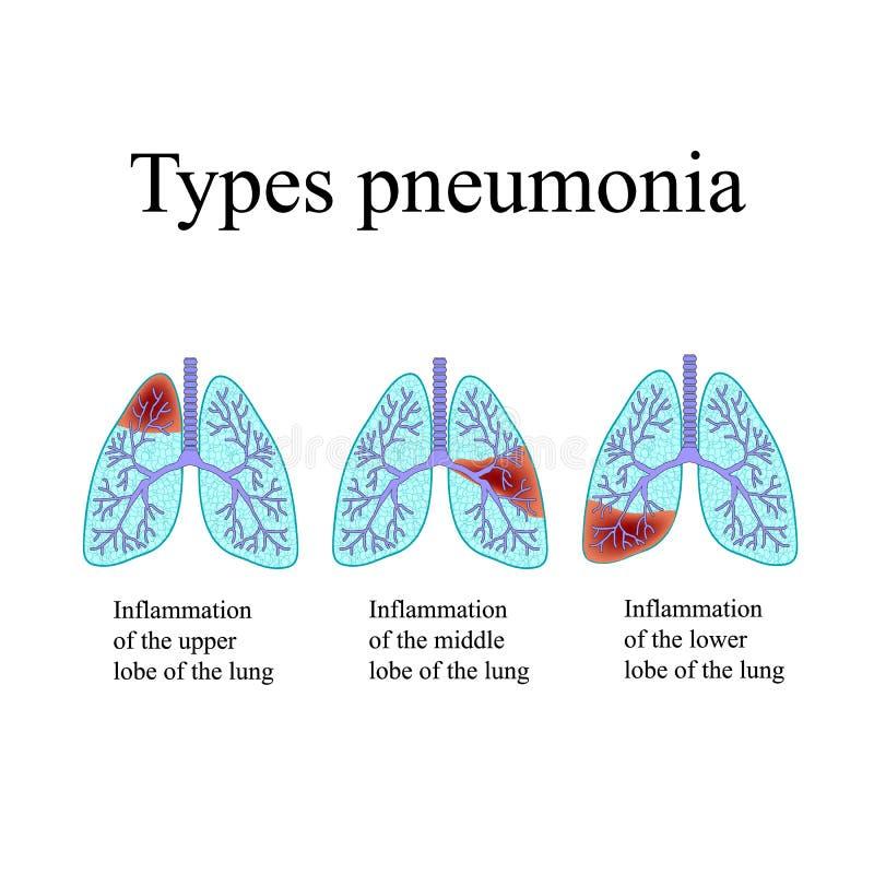 pneumonia A estrutura anatômica do pulmão humano Tipo de pneumonia Ilustração do vetor no fundo ilustração do vetor