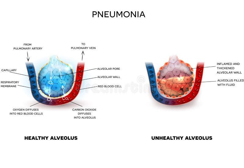 Pneumonia and healthy alveoli stock illustration