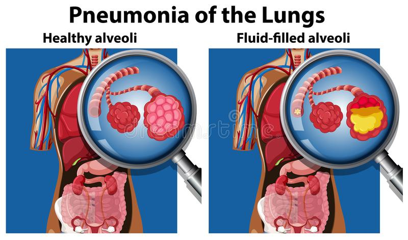 Pneumonia of the lungs concept vector illustration