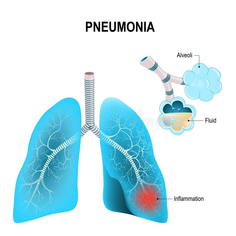 pneumonia pulmões humanos, e alvéolos inflamados ilustração do vetor