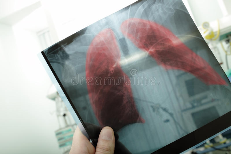 Pneumonia stock image