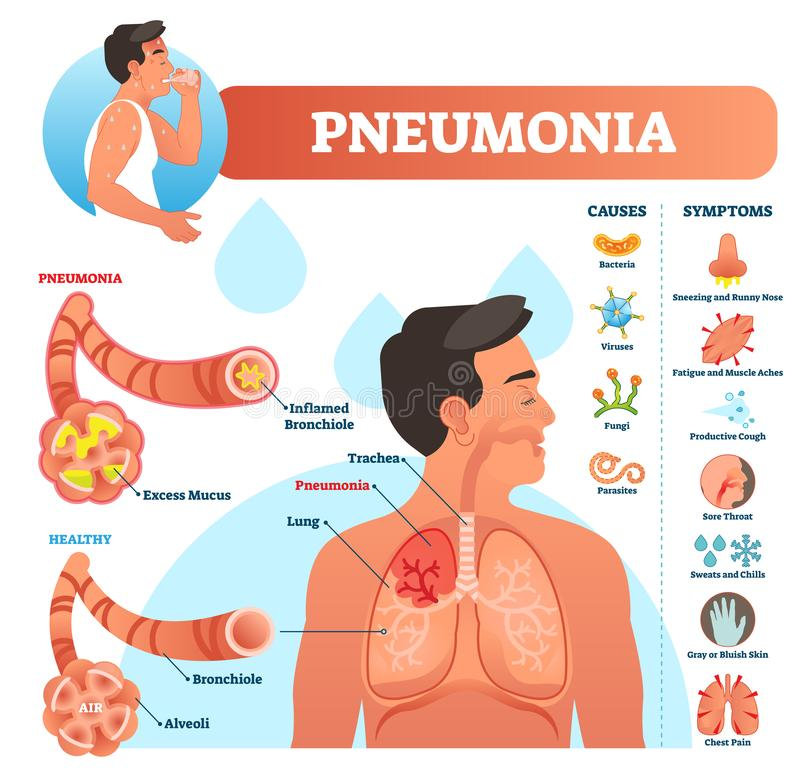 Pneumonia vector illustration. Labeled diagram with causes and symptoms. vector illustration