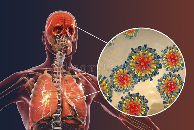 Pneumonie et encéphalite induites par rougeole illustration libre de droits