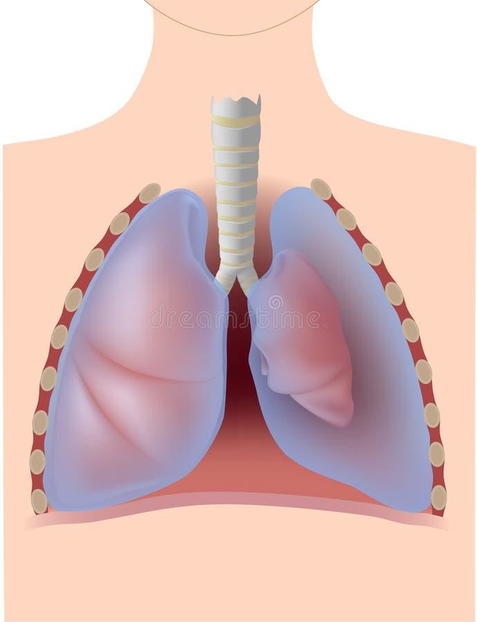 Pneumothorax vector illustratie