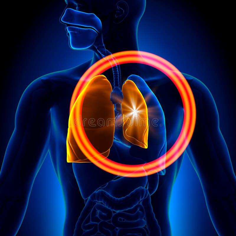 Pneumothorax - pulmão desmoronado ilustração do vetor