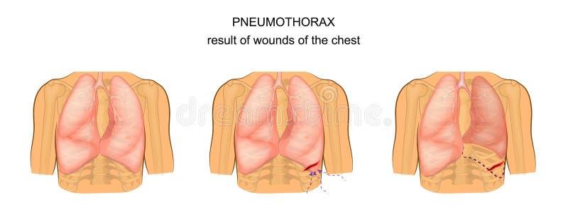 Pneumotorace come conseguenza delle ferite del petto illustrazione vettoriale