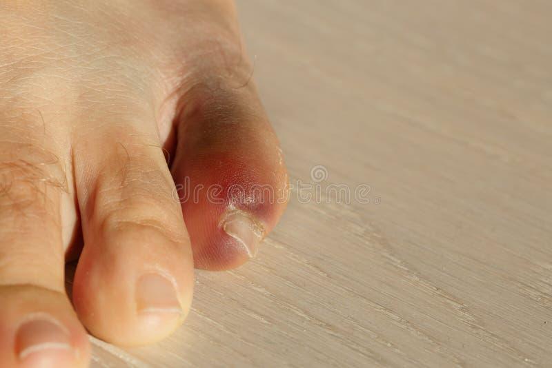 Poco dito del piede con infiammazione severa e l'ammaccatura fotografie stock libere da diritti