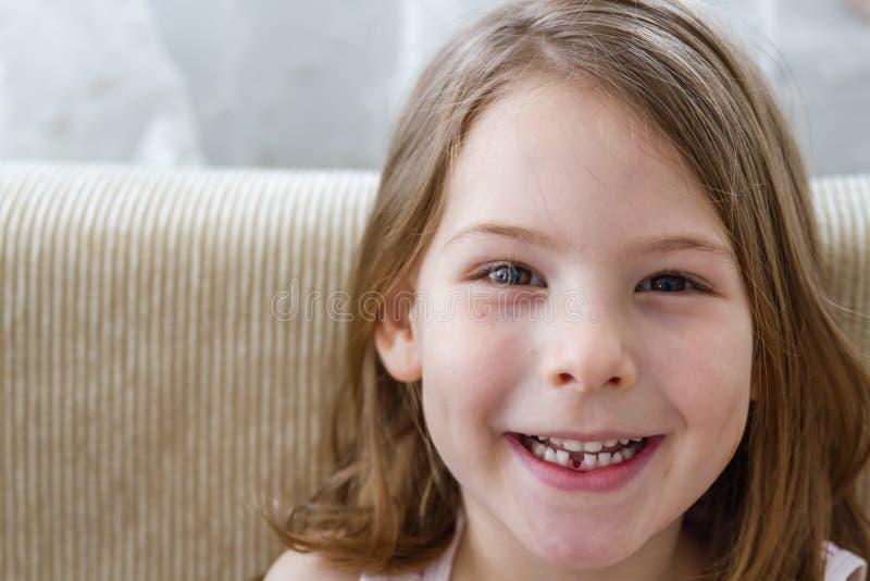 Poco muchacha linda con el primer diente de leche perdido imágenes de archivo libres de regalías