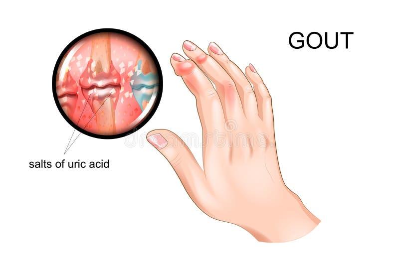 Podagra, artretyzm palce royalty ilustracja