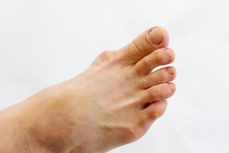 Foot with gout on the bones isolated. Podagra on foot with gout on the bones stock images