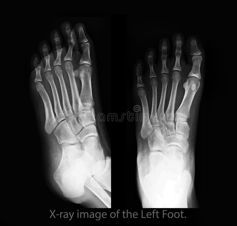 Podagryczny artretyzm ekranowy promieniowanie rentgenowskie lewa stopa frontowy i boczny widok obrazy royalty free