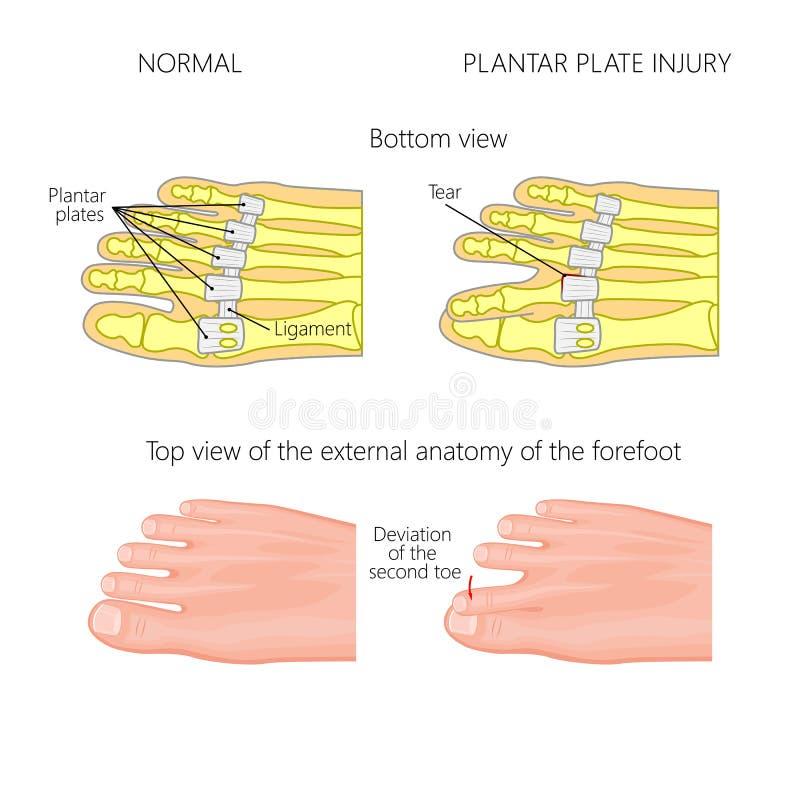 Podeszwowa półkowa łza Dewiacja palec u nogi ilustracja wektor