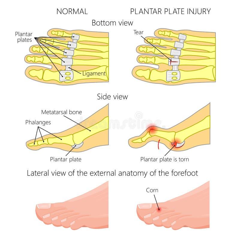Podeszwowa półkowa łza Młoteczkowy palec u nogi ilustracja wektor