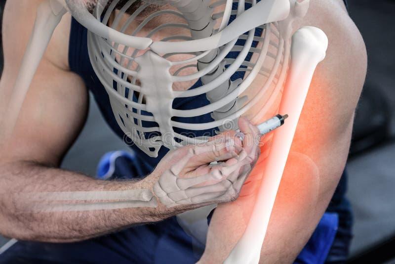 Podkreślająca ręka wstrzykuje anabolic steryd przy gym silny mężczyzna fotografia stock