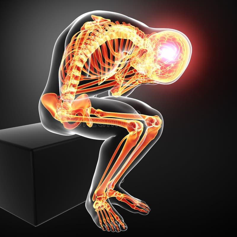 Podkreślający męskiego ciała kościec z migreną ilustracja wektor