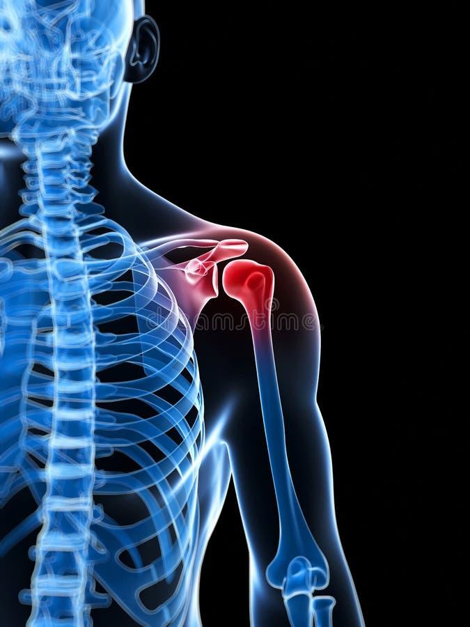 Download Podkreślający Naramienny Złącze Ilustracji - Ilustracja złożonej z mankiecik, osteoporosis: 28961679