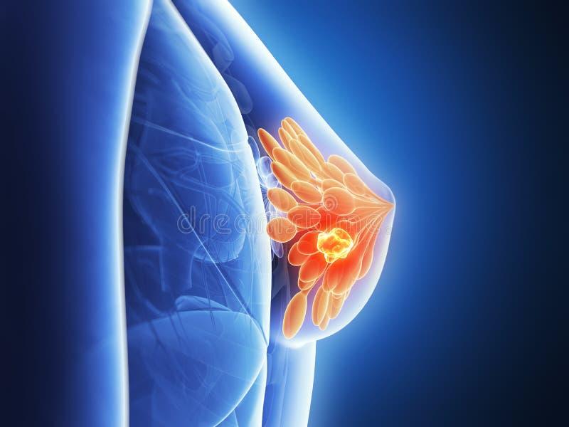 Podkreślający nowotwór piersi royalty ilustracja