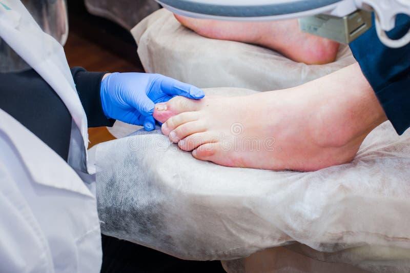 Podology behandling Fotvårdsspecialist som behandlar tånagelsvampen Doktorn tar bort valkar, havre, och ingrown fester spikar Mas royaltyfria bilder