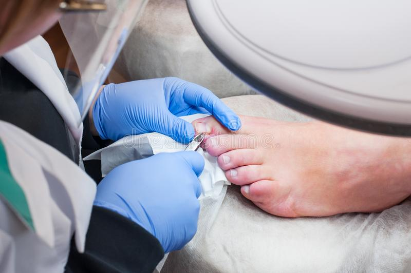 Podology treatment. Podiatrist treating toenail fungus. Doctor removes calluses, corns and treats ingrown nail. Hardware manicure. royalty free stock image