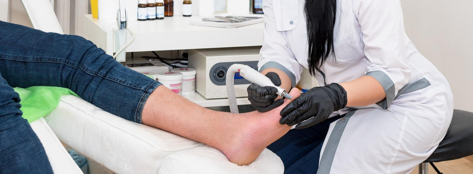 Podology treatment. Podiatrist treats foot. Podiatry doctor or dermatologist treats the patient in modern clinic royalty free stock image