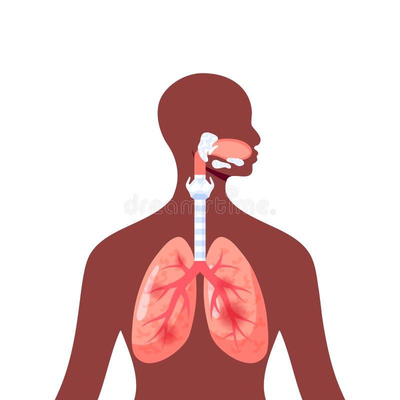 Podrażnionych płuc wektorowa ikona w mieszkanie stylu ilustracji