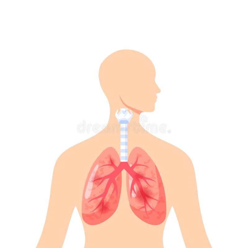 Podrażnionych płuc wektorowa ikona w mieszkanie stylu royalty ilustracja