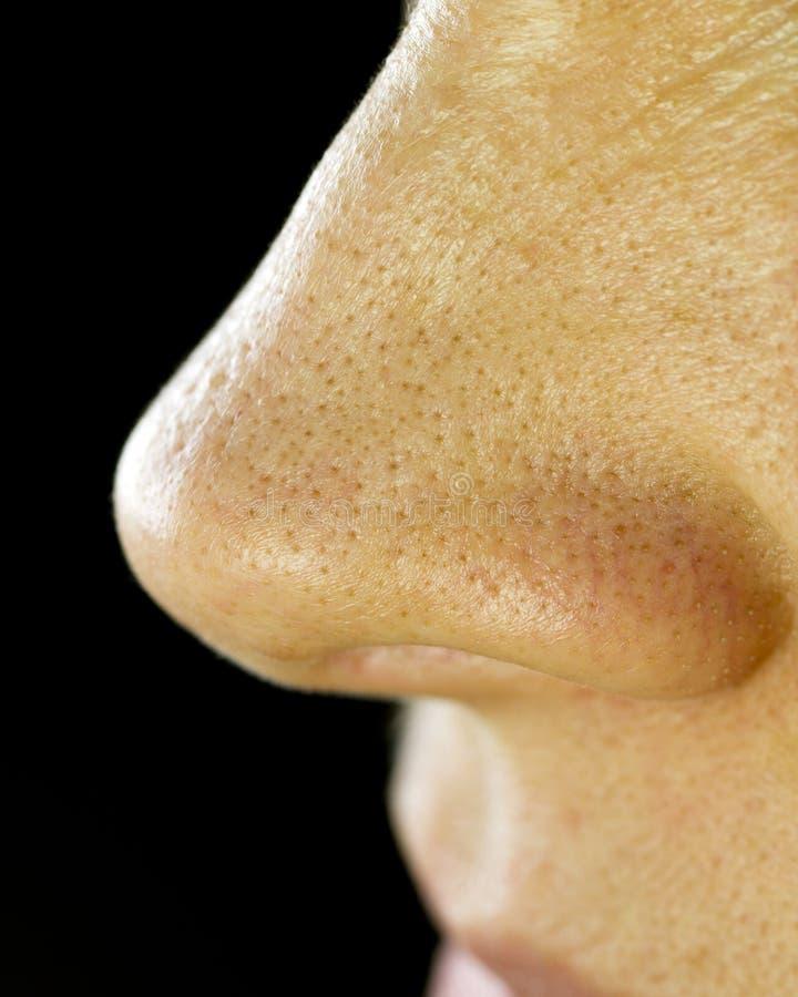 Points noirs sur le nez. Instruction-macro   photographie stock libre de droits