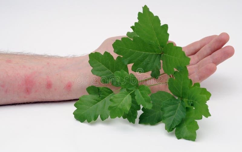 Poison ivy and rash stock photos