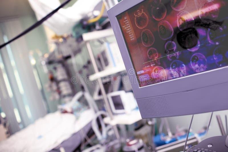 Pojęcie nowożytny techniczny wyposażenie skanować uszkadzającego mózg fotografia stock