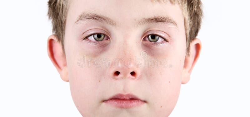 Pojke med allergiska shiners royaltyfria bilder