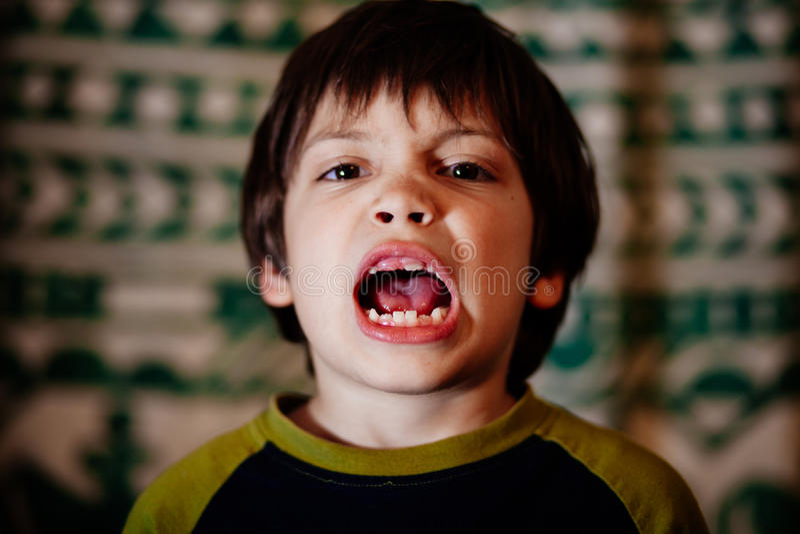 Pojke med ojämna tänder royaltyfria foton