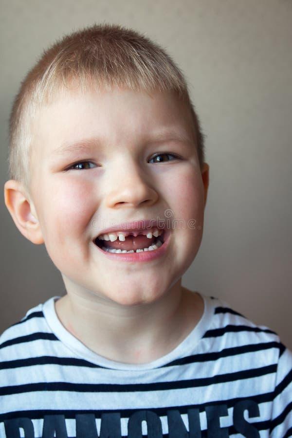 Pojkesaknaden mjölkar tänder royaltyfria bilder