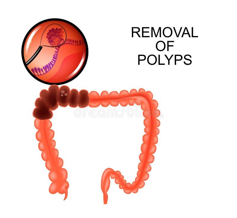 Poliepen in de dubbelpunt verwijdering van poliepen royalty-vrije illustratie