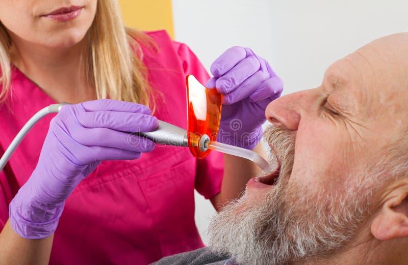 Polimerização dental no paciente idoso foto de stock royalty free